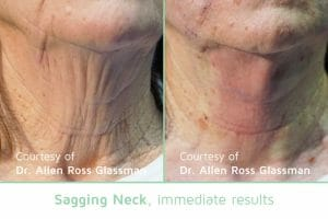 Sagging Neck NovaThread Thread Lift